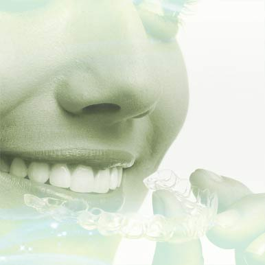 image about invisible braces houston